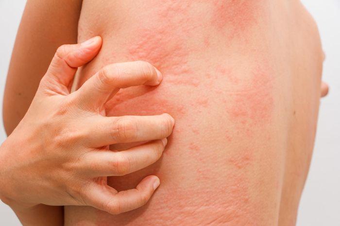 ciri ciri orang yang mempunyai tubuh alergi ini lah penyebabnya .